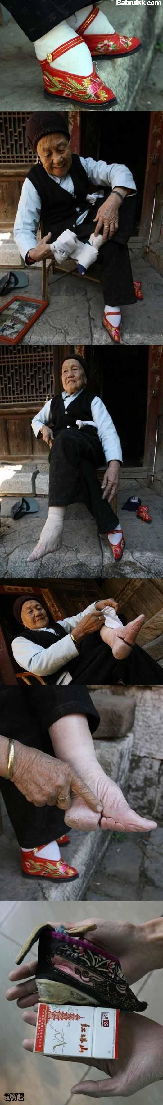 китайские ноги, уродские ступни